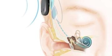 Imagen de implante colocado en la parte posterior del oido.