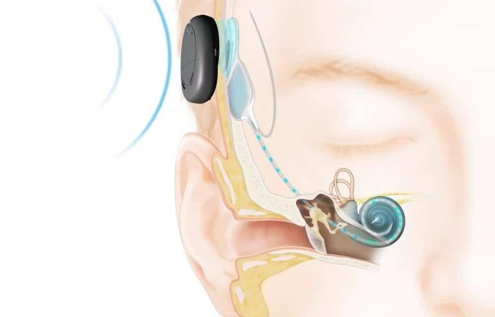 Imagen de implante coclear en la parte posterior del oído.