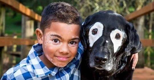 niño con vitiligo