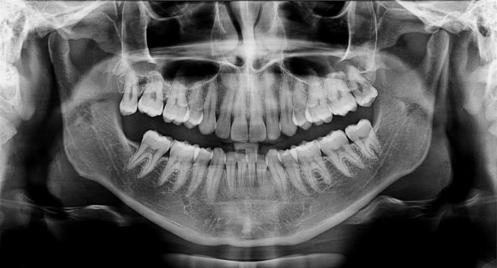 rayos X boca