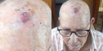 Un hombre con un tumor no puede ser operado porque no había anestesista