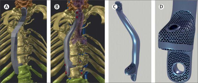 Implante titanio
