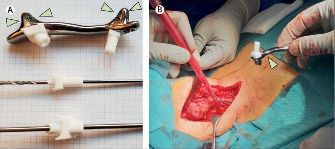 Implante titanio y cicatriz