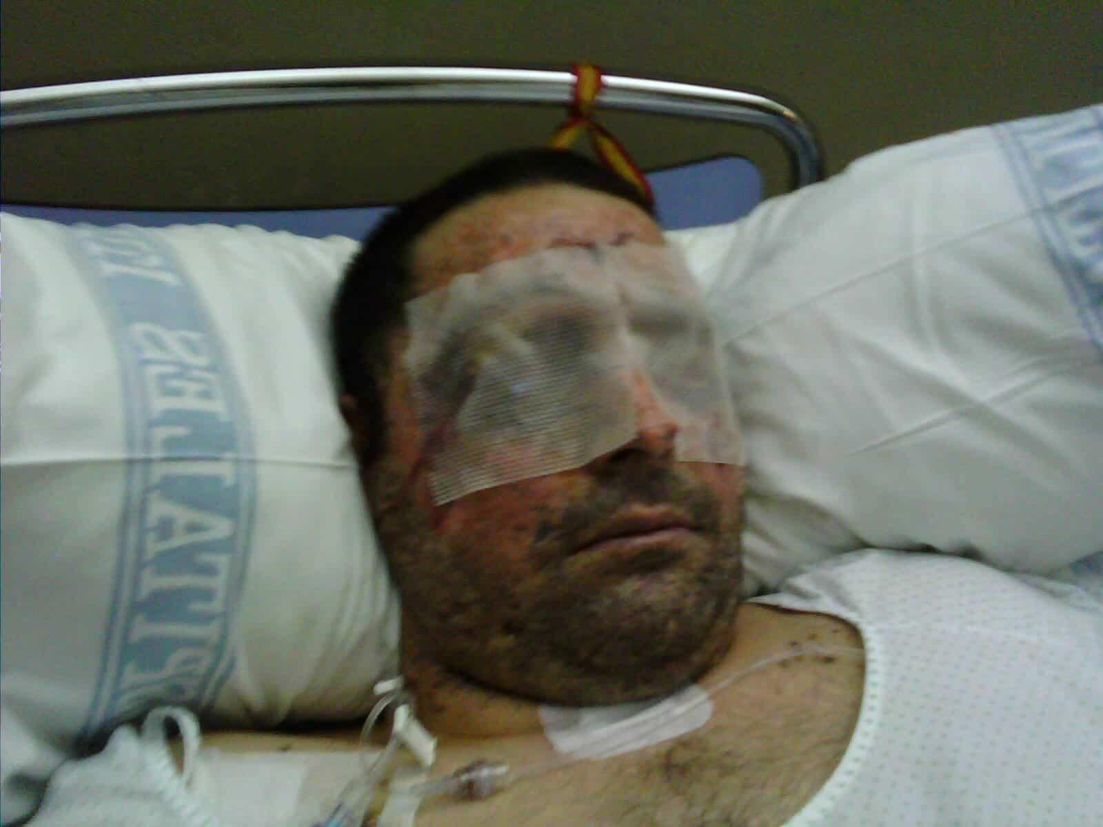 José Manuel durante su recuperacion tras el siniestro con una mina.