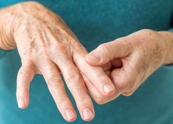 Manos de una persona con Artritis Reumatoide