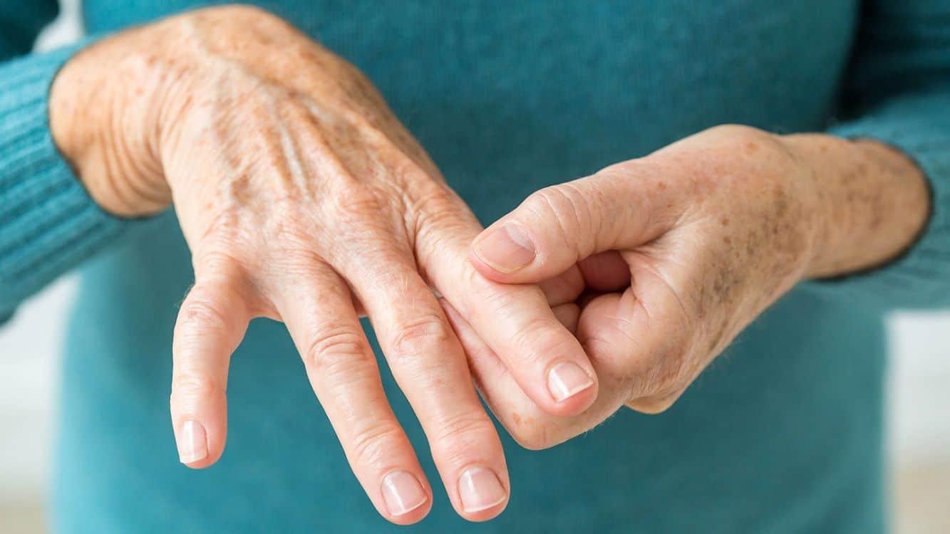 Qué es la artritis reumatoide? Síntomas y tratamiento