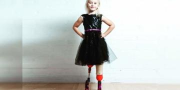 Daisy-May Demetre con prótesis en las piernas