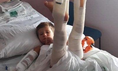 Luis, niño con piernas escaroladas y levantadas