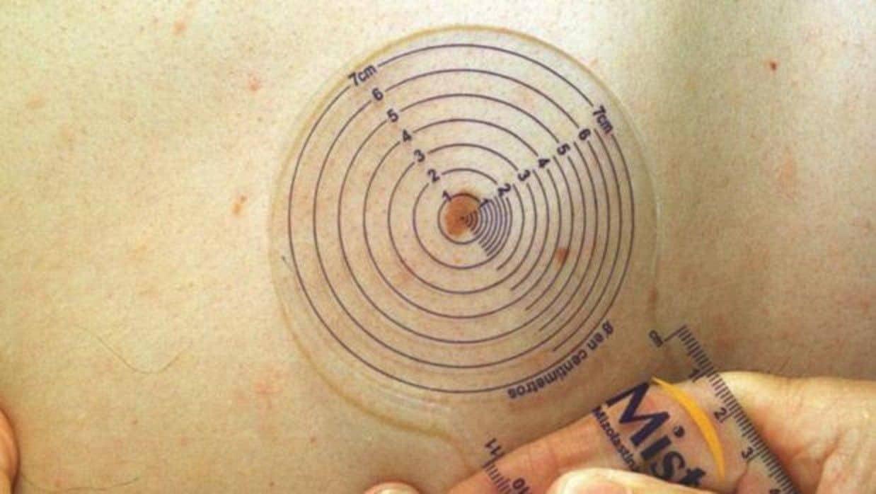 Un médico mide un melanoma