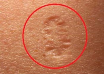 Cicatriz en el hombro