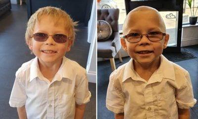 Olly antes y después de afeitarse la cabeza