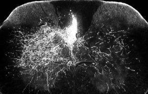 Rayas brillantes a la derecha muestran que en ratones tratados con gabapentina, los axones motores descendentes son capaces de brotar para enviar impulsos nerviosos a la parte denervada de la médula espinal, paso clave para reconstruir el sistema nervioso - OHIO STATE UNIVERSITY