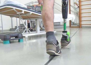 La prótesis de pierna que estimula los nervios mejora el movimiento y la funcionalidad en amputados. - FRANCESCO M. PETRINI - ARCHIVO