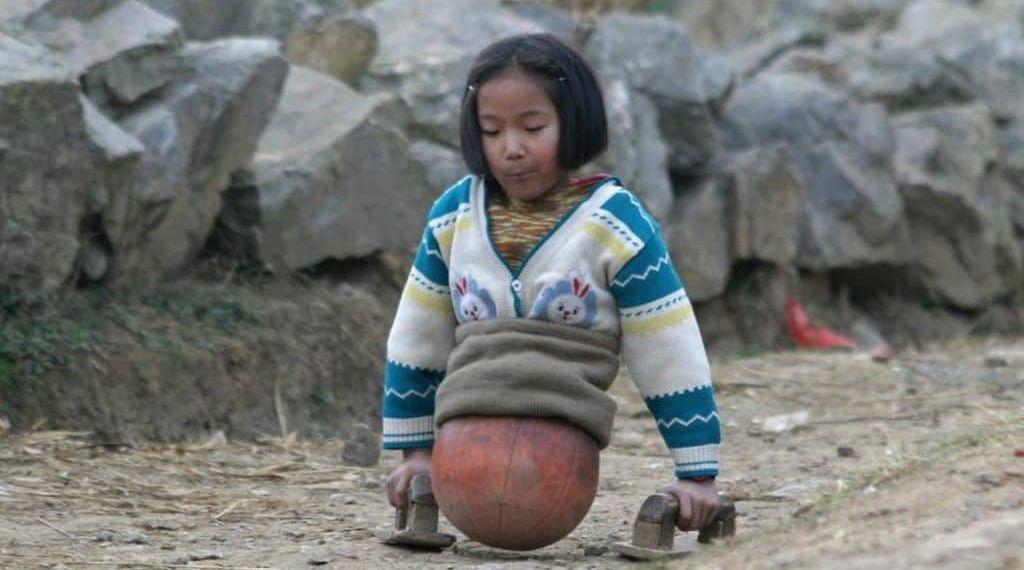 Qian Hongyan, hace diez años, desplazándose con una pelota como piernas