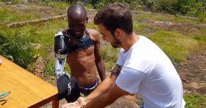 Guillermo poniendo una prótesis a un joven.