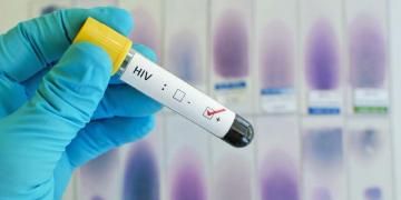 Confirman la cura del sida en un paciente tras más de dos años sin medicación