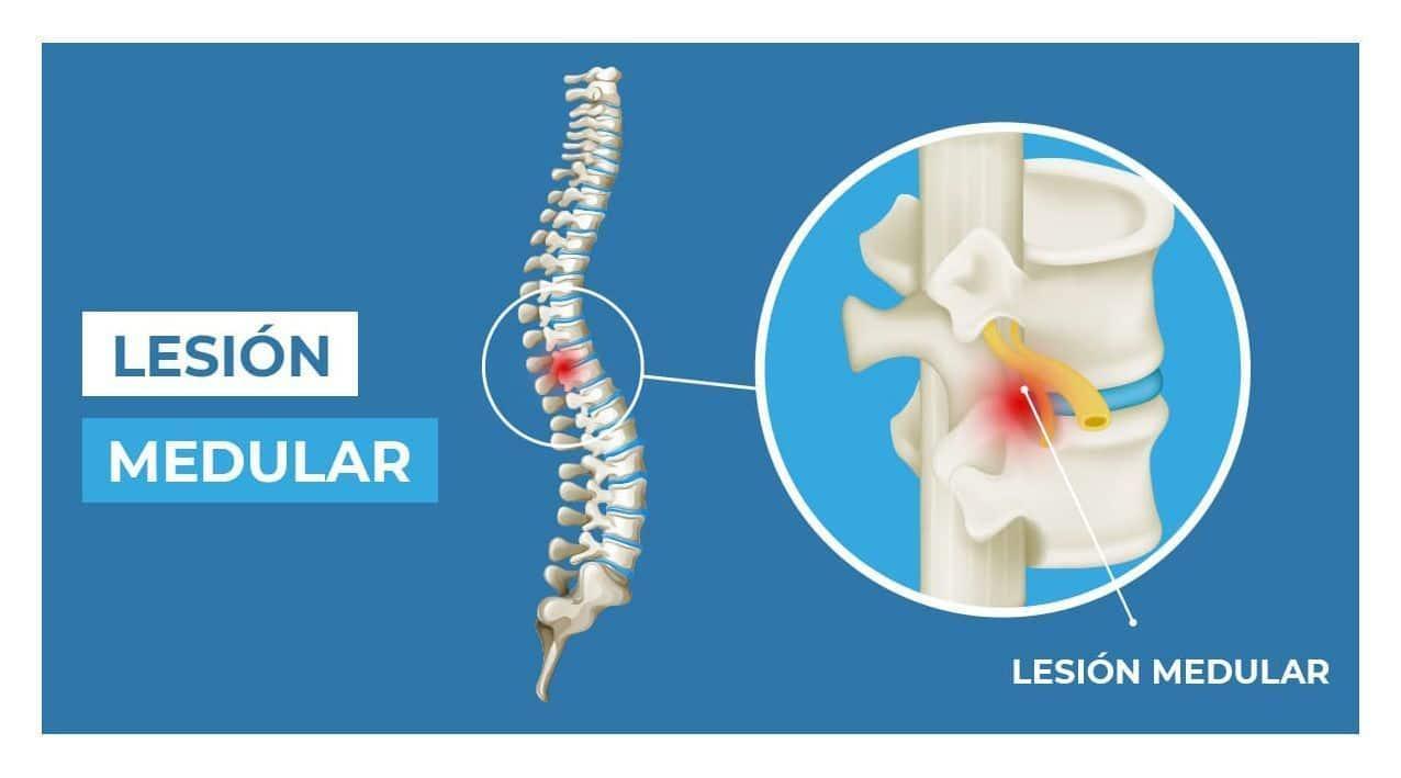 lesion medular columna vertebral