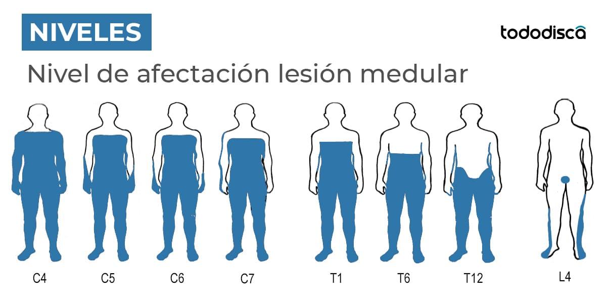 niveles lesion medular