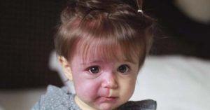 Niña con síndrome de Sturge Weber