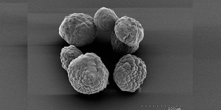 Organoides de células tumorales pancreáticas de ratón crecidas cáncer páncrea colesterol