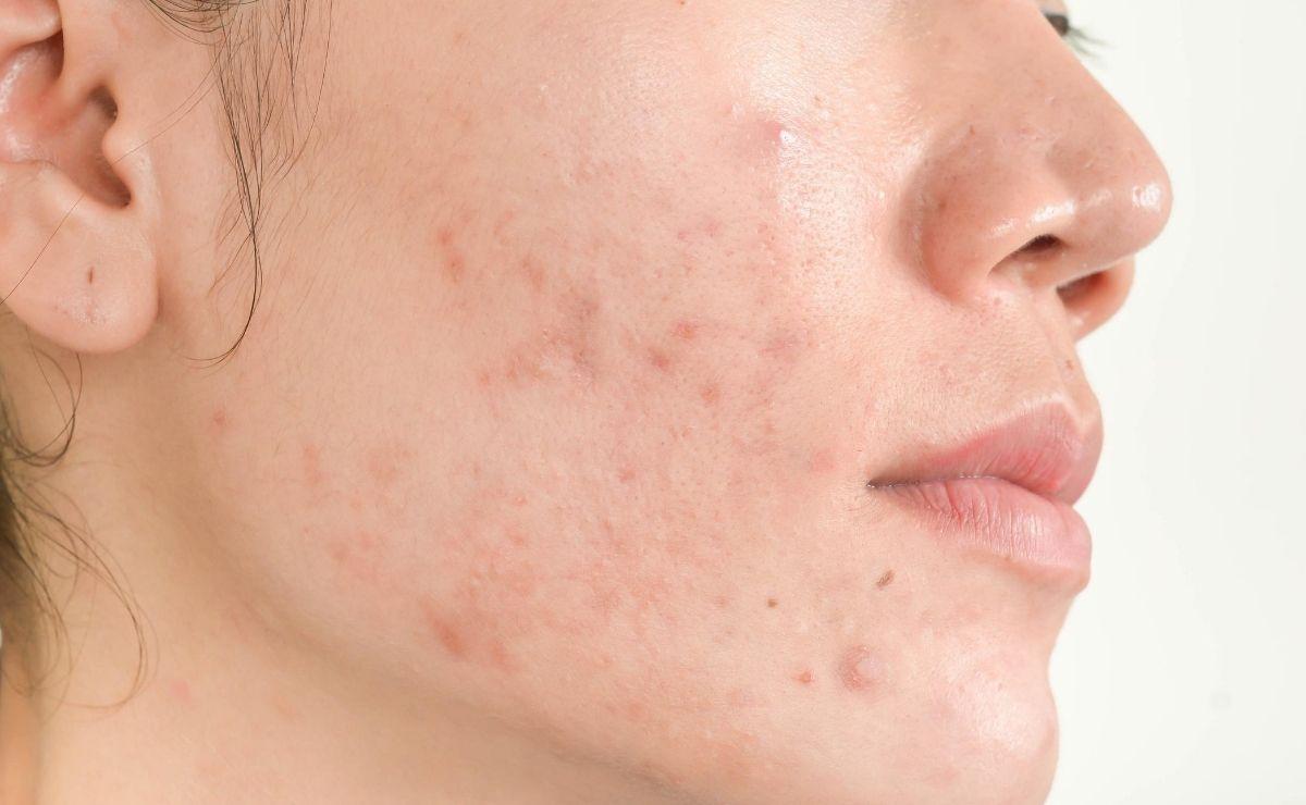 Acné problema piel