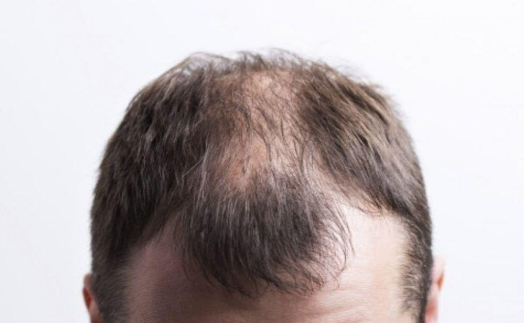 Alopecia: La temible pérdida del cabello