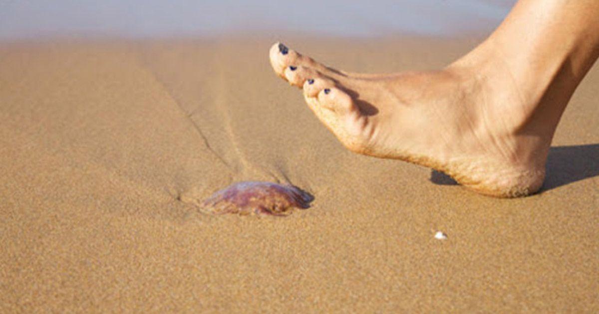 Picaduras de medusa