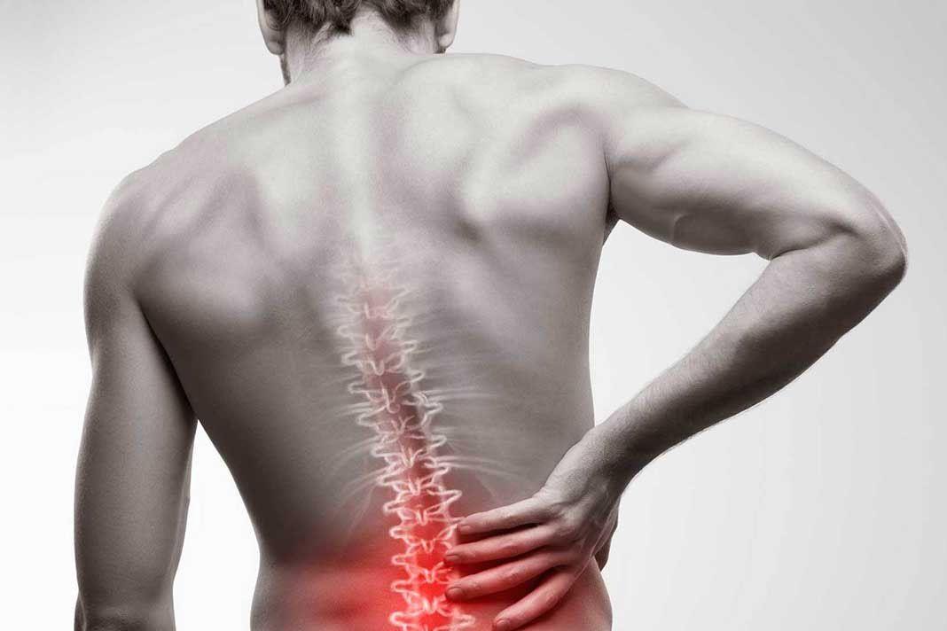 nervio ciático ciática dolor