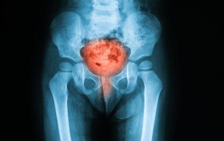 infecciones tracto urinario síntomas remedios caseros infusiones