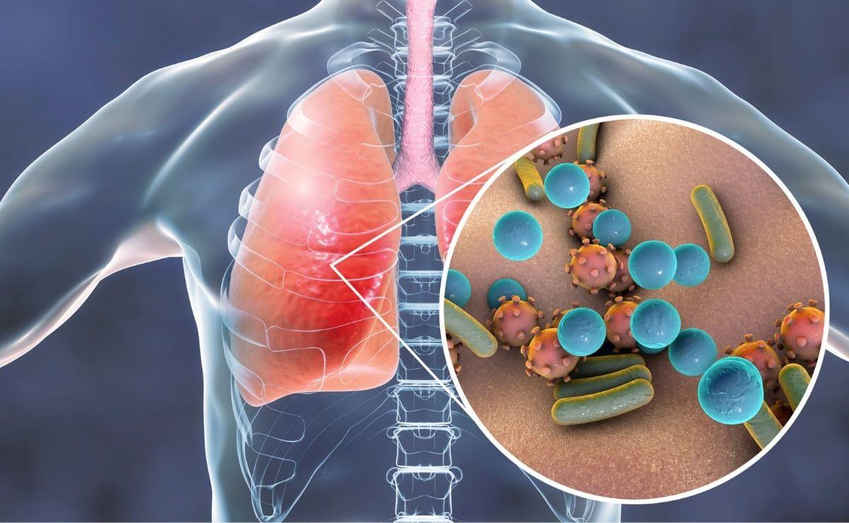 Dengue Influenza Coronavirus infeccion respiratoria
