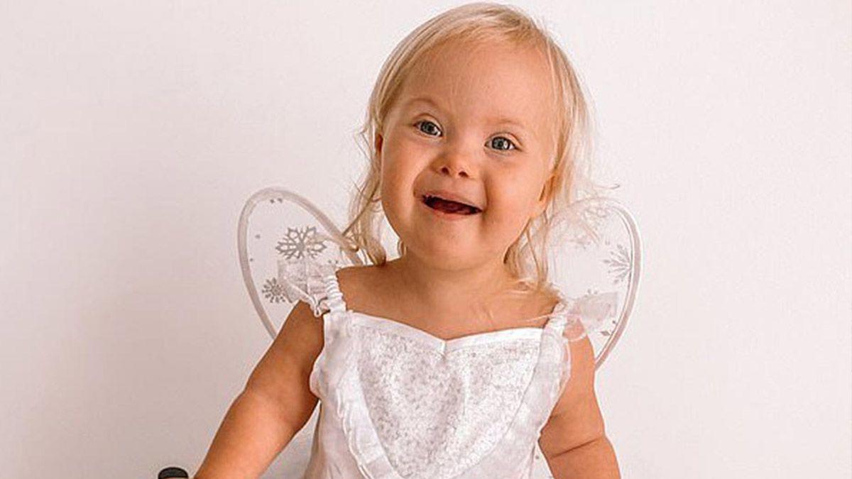 Willow Welbourn, bebé con síndrome de Down