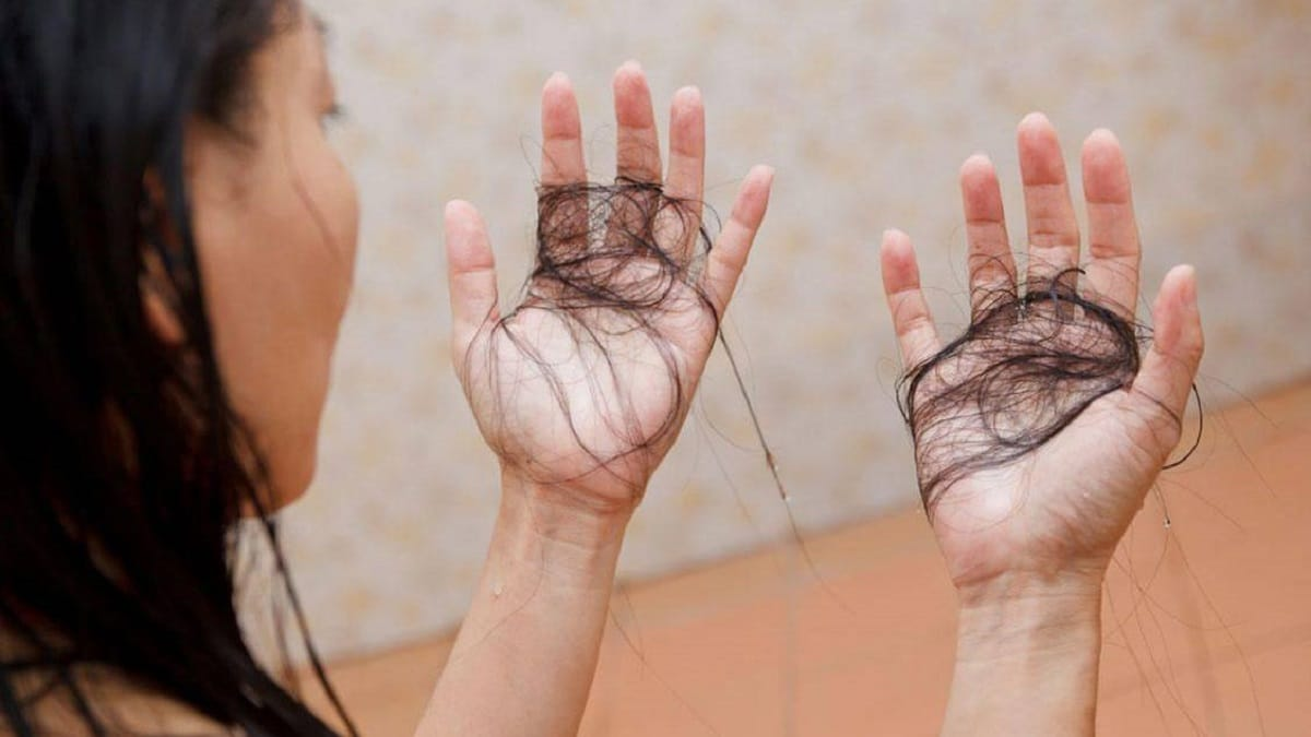 caída del cabello confinamiento