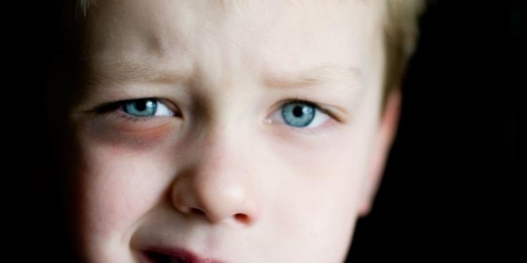 Moretones ojo