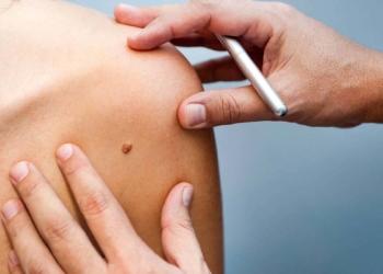melanoma sistema inmunológico
