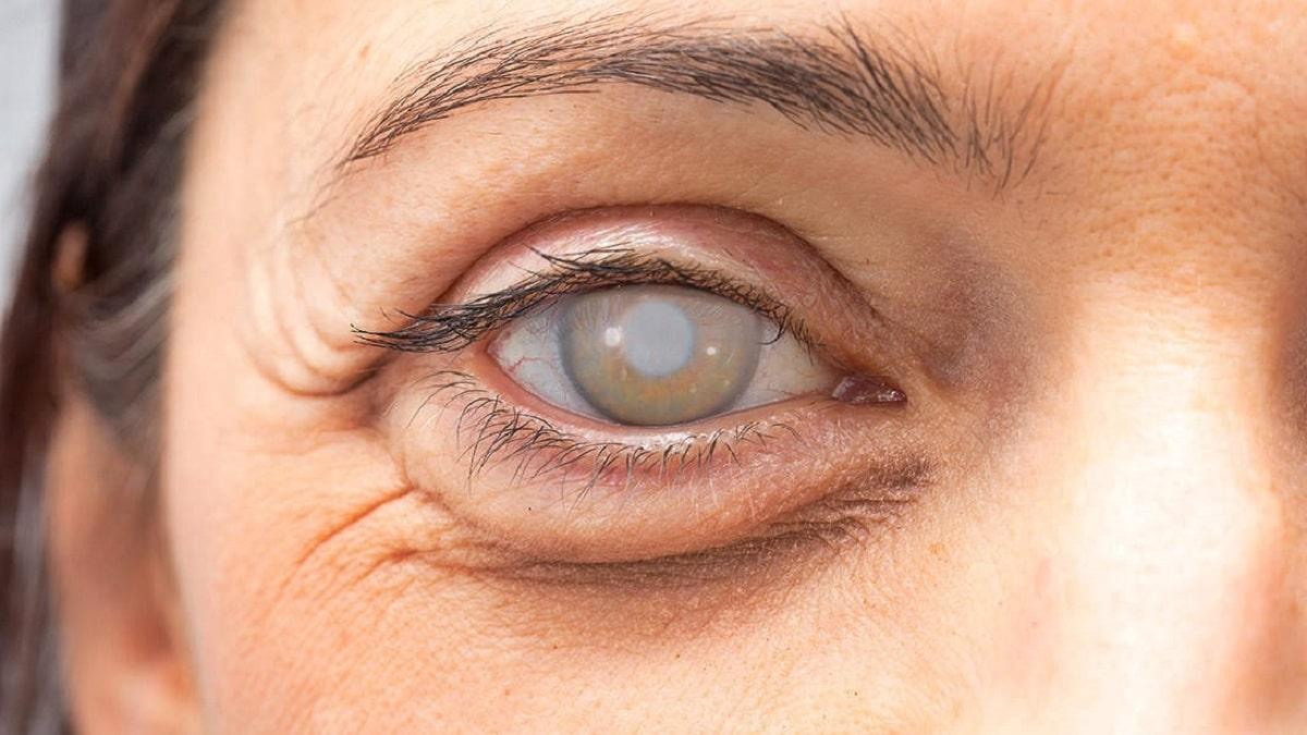vitamina A ceguera