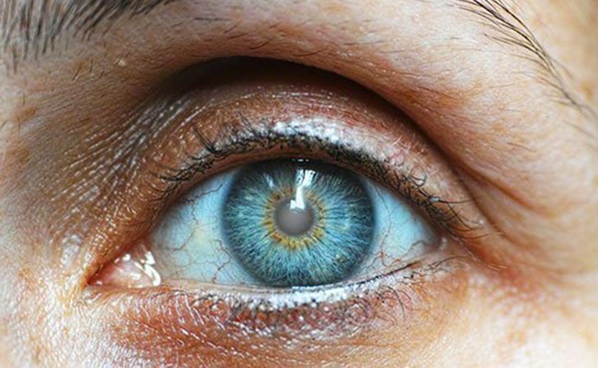 Persona con cataratas en la visión