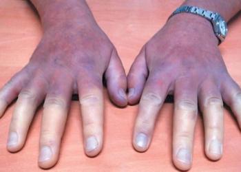 esclerodermia enfermedad manos acartonadas