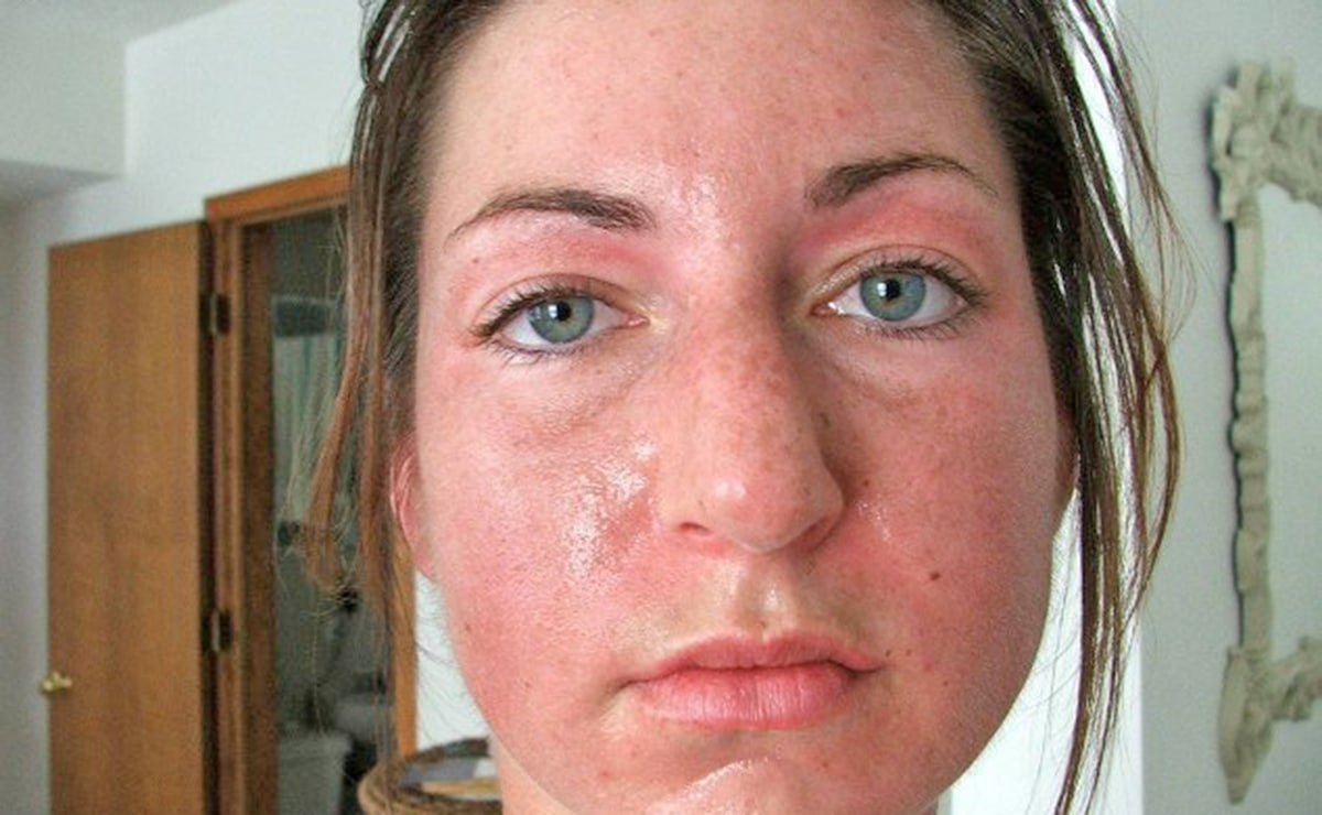 Mujer con acné vitamina B12
