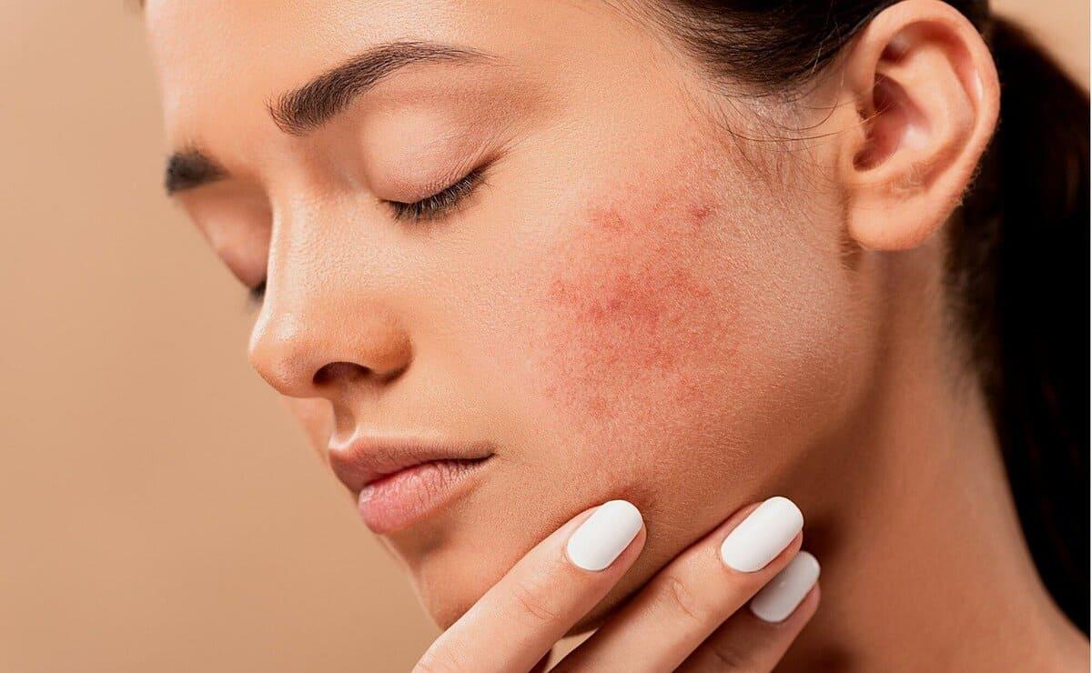 El carbón activado erradica el acné de la piel