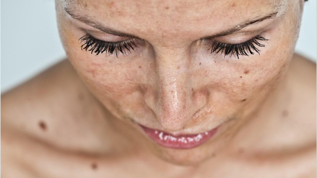 alfahidroxiácidos piel