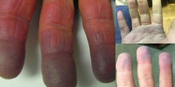 la cianosis cambia el color de la piel