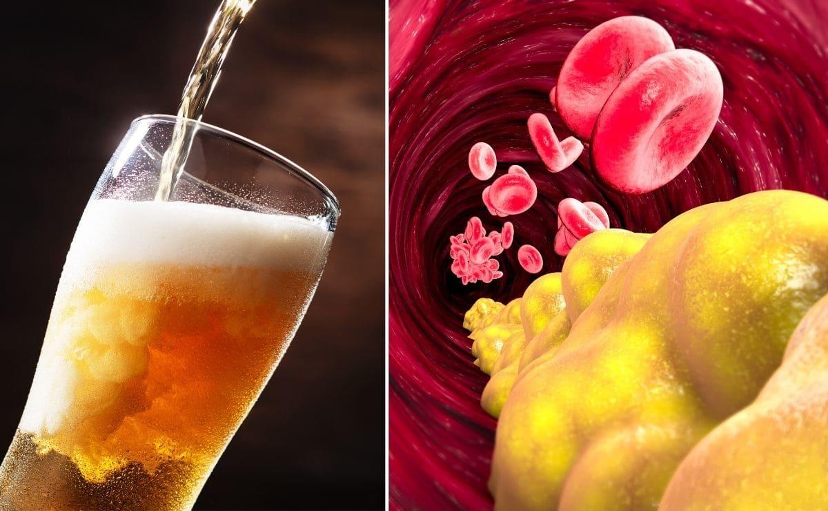 ¿Afecta tomar cerveza a los niveles de triglicéridos?