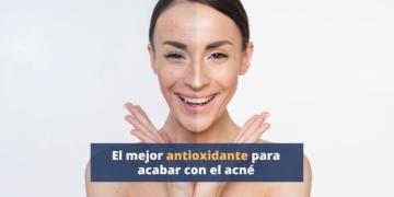 El mejor antioxidante para acabar con el acné