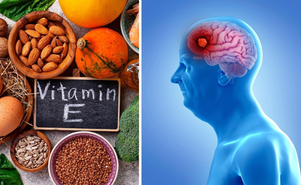 Vitamina E Alzheimer