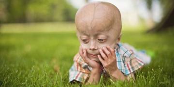 enfermedades raras infancia