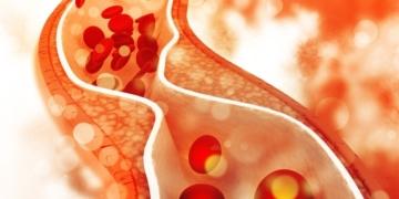 Colesterol diabetes alzheimer