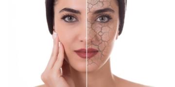 Piel seca acné