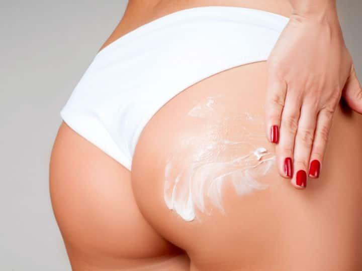 remedios caseros acné glúteos