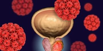 Cáncer de próstata vitamina C