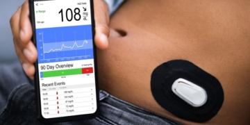 sistema monitorización glucemia